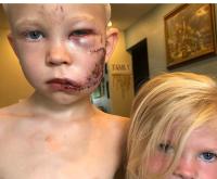 Criança tem o rosto desfigurado ao salvar irmã de ataque de cachorro