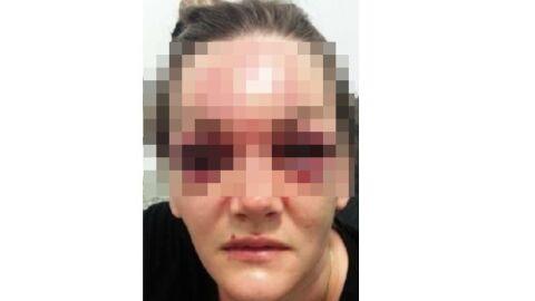 Homem é preso após desfigura rosto da ex-mulher com joelhadas