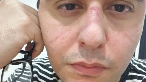 Médico voluntário da vacina da Covid-19 morre aos 28 anos, Anvisa não revela se foi testado