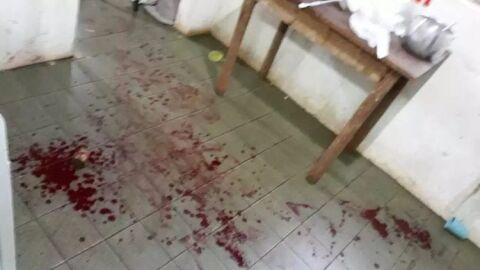Mulher é esfaquada pelo marido durante briga por causa de R$ 4