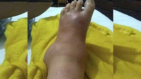 Corrida contra o tempo: Mulher faz vakinha para não perder seus pés