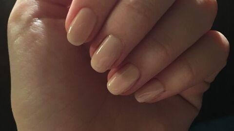 Ter unhas lindas e saudáveis vai além do cuidado das manicures