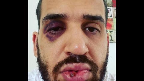 Médico paranaense é espancado por familiares ao defender medidas restritivas