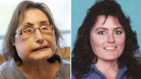 1ª pessoa do mundo a receber transplante de face, morre aos 57 anos