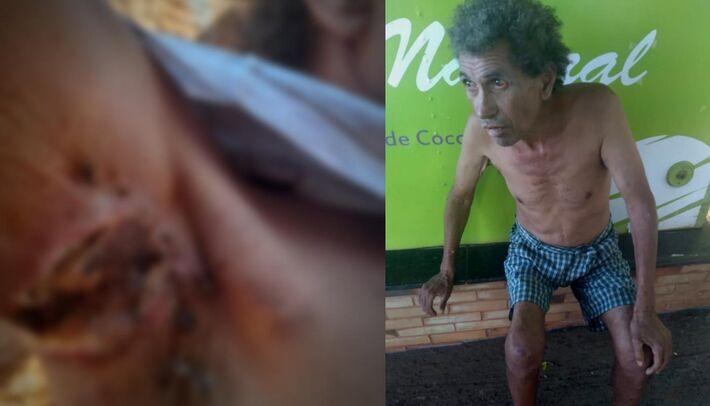 Josué foi encontrado nesta manhã. A esquerda imagem de sua axila ferida (Conteúdo foi desfocado)