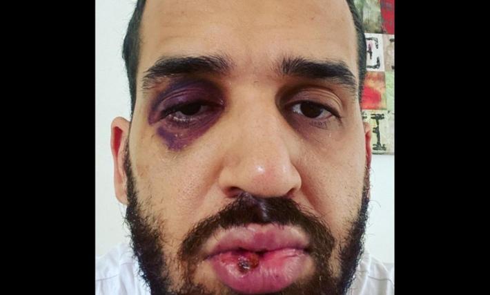 Médico publicou esta imagem na rede social com os traços de violência
