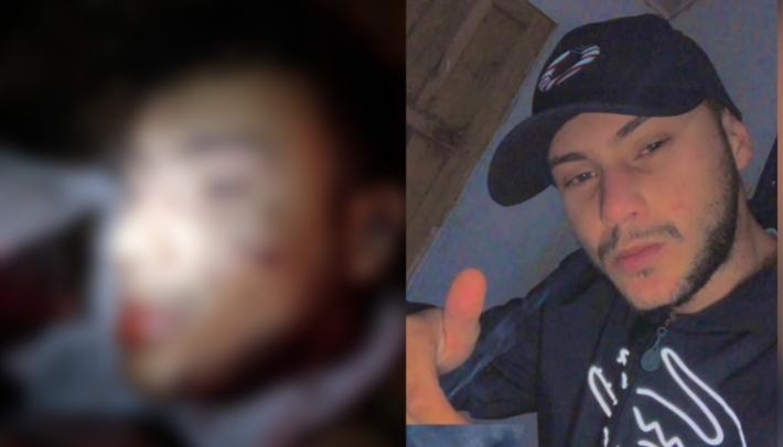 Imagem mostra a cabeça do rapaz decapitada sobre o que parece ser uma bolsa de estopa.