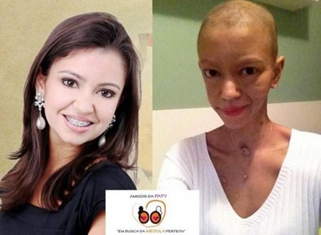 Jovem sidrolandense Patrícia Oshiro Brentan, portadora de leucemia<br />Foto: Região News