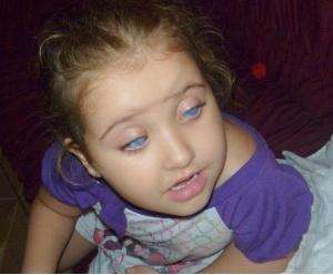 Thaiani precisa de uma cirurgia para correção da pressão arterial dos olhos (Foto: Dianelle Moura)