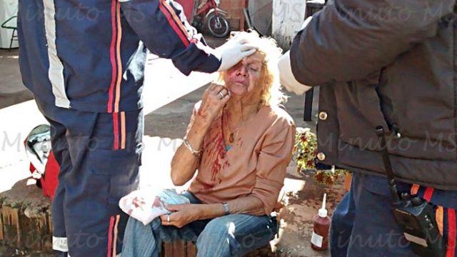 Idosa de 77 anos é atacada por cachorro dogue alemão em Três Lagoas - Foto: Foto: Celso Daniel/ Minuto MS