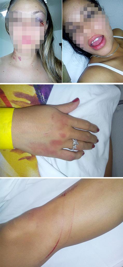 Amiga e ex-mulher ficam com marcas pelo corpo após agressões<br />Foto: Divulgação
