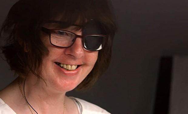 Rhian Lewis teve chip implantado na retina (Foto: BBC)