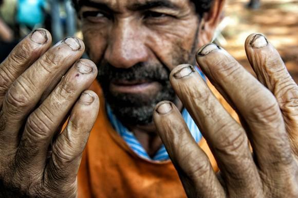 Ronaldo Nogueira quer regras mais claras para a definição do que é trabalho escravo. Para especialistas, portaria esvazia fiscalização e favorece quem pratica esse tipo de crime
