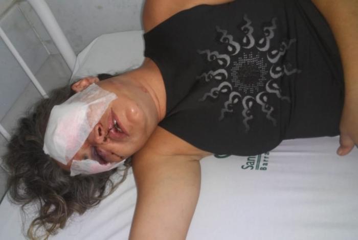 Luana Cunha da Silva, de 35 anos, foi violentamente espancada com soquete de feijão pelo ex-companheiro, Paulo Roberto Lopes da Silva Júnior