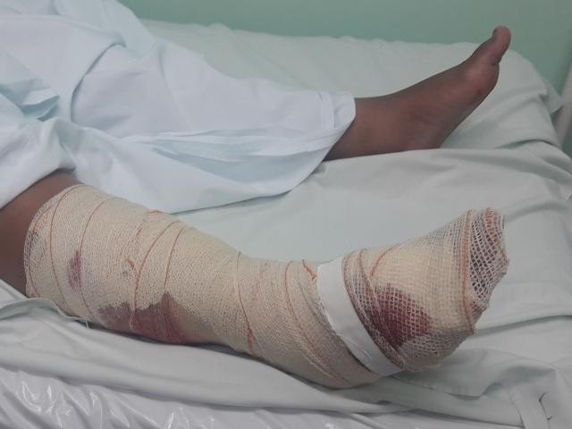 Mulher sofreu ferimentos graves na perna atacada pelo cachorro