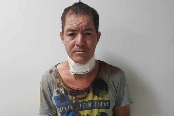 Adão Sales, de 45 anos, diz se lembrar de ter atingido o próprio pescoço, mas não de matar a mãe