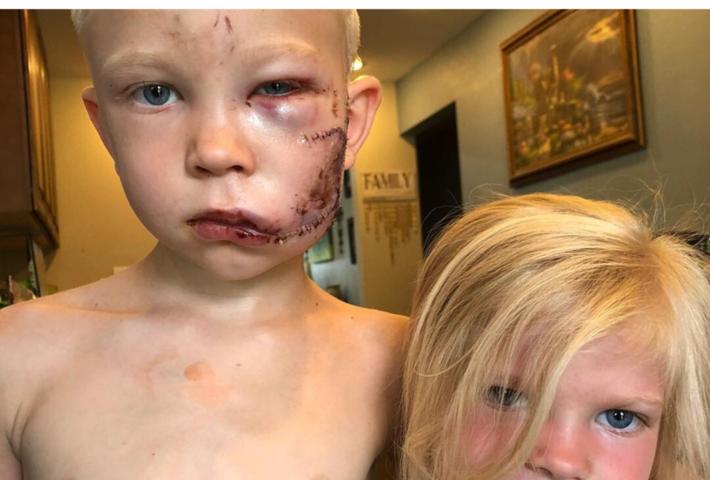 Menino salva a irmã de ataque de cachorro e fica com rosto desfigurado
