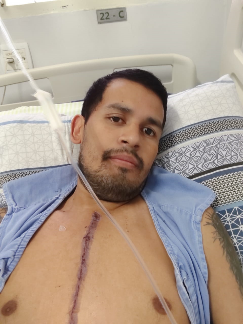 Esse é Miller, submetido a cirurgia devido a terem descoberto uma veia principal de coração se rompia