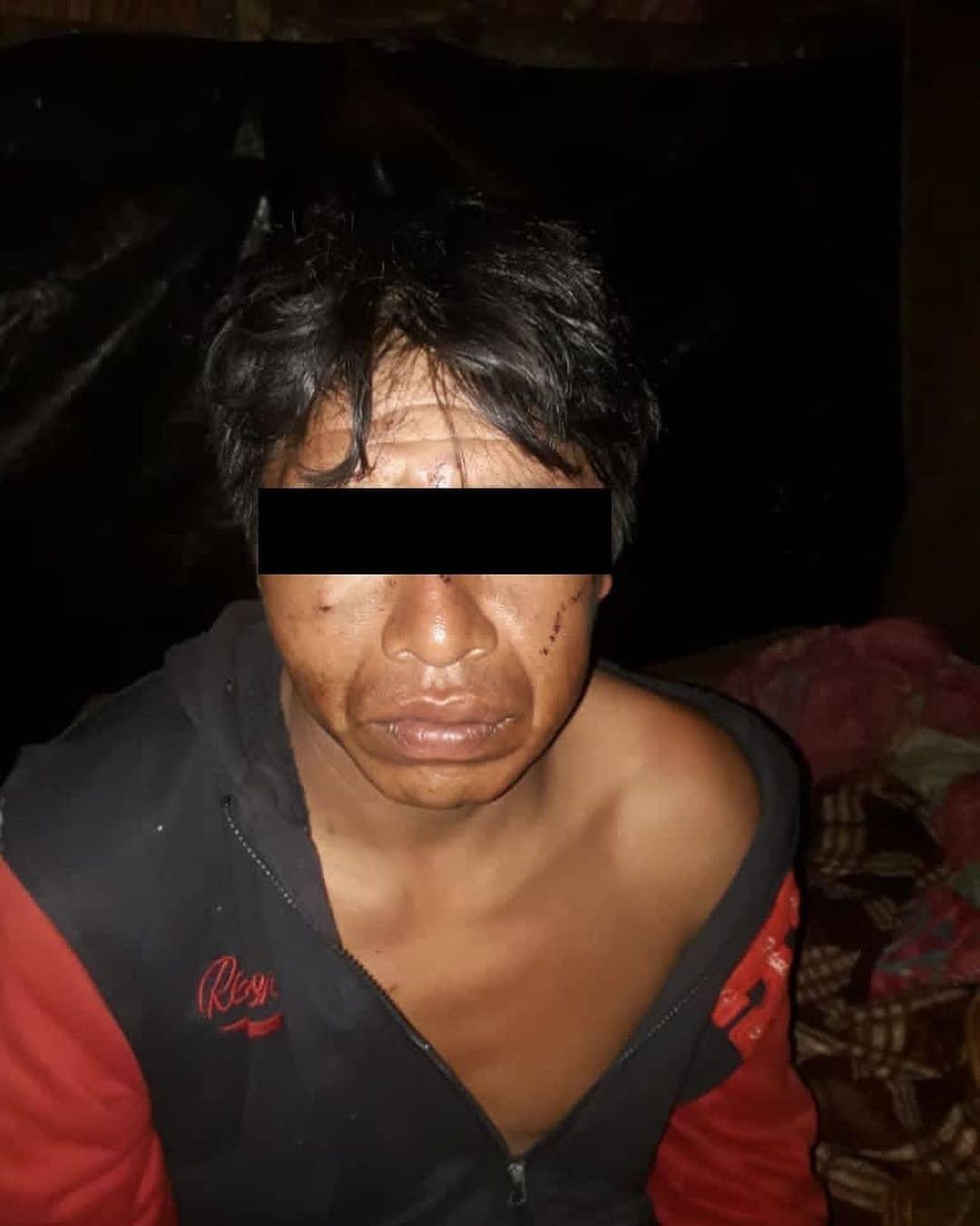 Os indígenas torturados conseguiram escapar ensanguentados e correr do grupo armado
